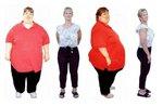 Операция, проводимая для снижения веса, привела к смерти женщины