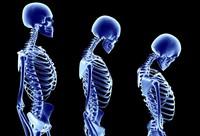 Остеопороз костей — бич XXI века