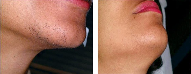 эпиляция волос на лице у женщин эпилятором